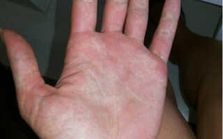 Лихорадка Денге в Таиланде – симптомы, лечение, профилактика