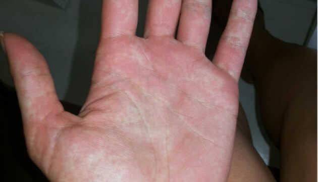Лихорадка Денге в Таиланде — симптомы, лечение, профилактика